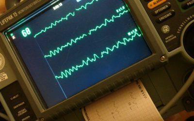 Defibrillation beim Kammerflimmern
