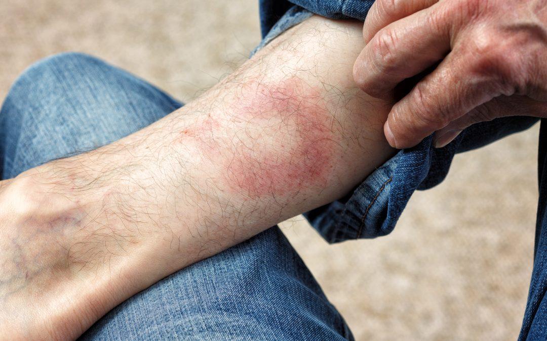 Lyme Borreliose / Borreliose Infektion durch Zecken